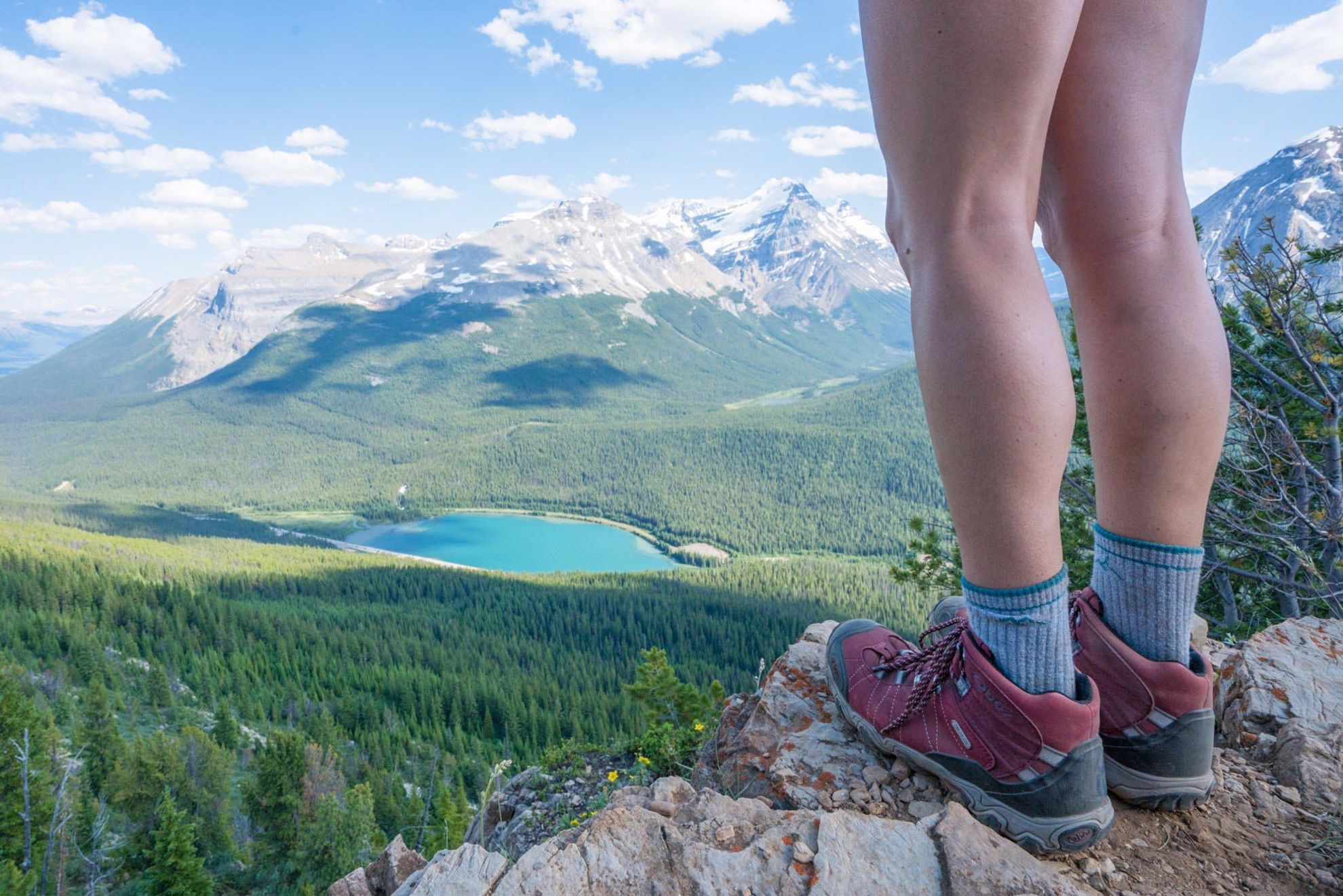 Foot care on hiking and backpacking trips